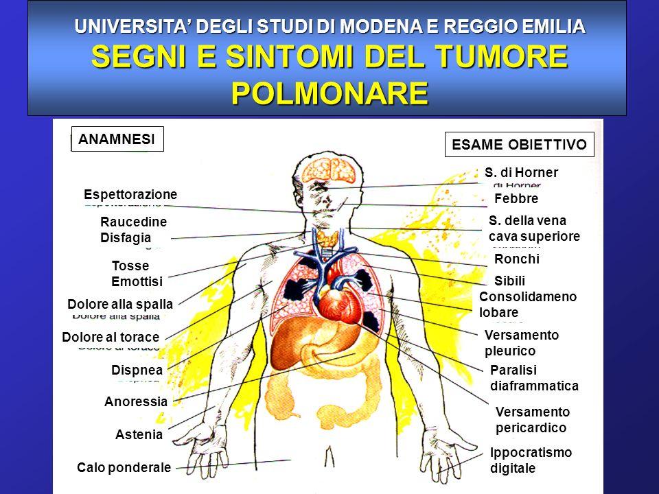 Coinvolgimento metastatico di diversi organi nel Ca.