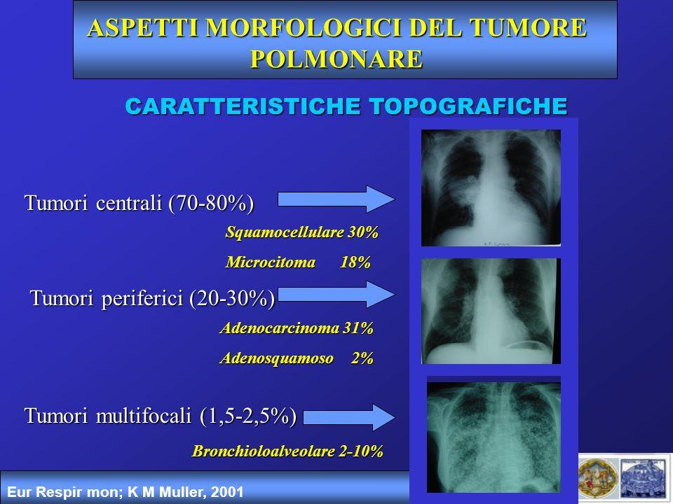 ASPETTI MORFOLOGICI DEL TUMORE POLMONARE Eur Respir mon; K M Muller, 2001 CARATTERISTICHE TOPOGRAFICHE Tumori centrali (70-80%) Tumori periferici (20-