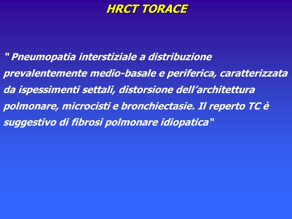 HRCT TORACE Pneumopatia interstiziale a distribuzione prevalentemente medio-basale e periferica, caratterizzata da ispessimenti settali, distorsione d