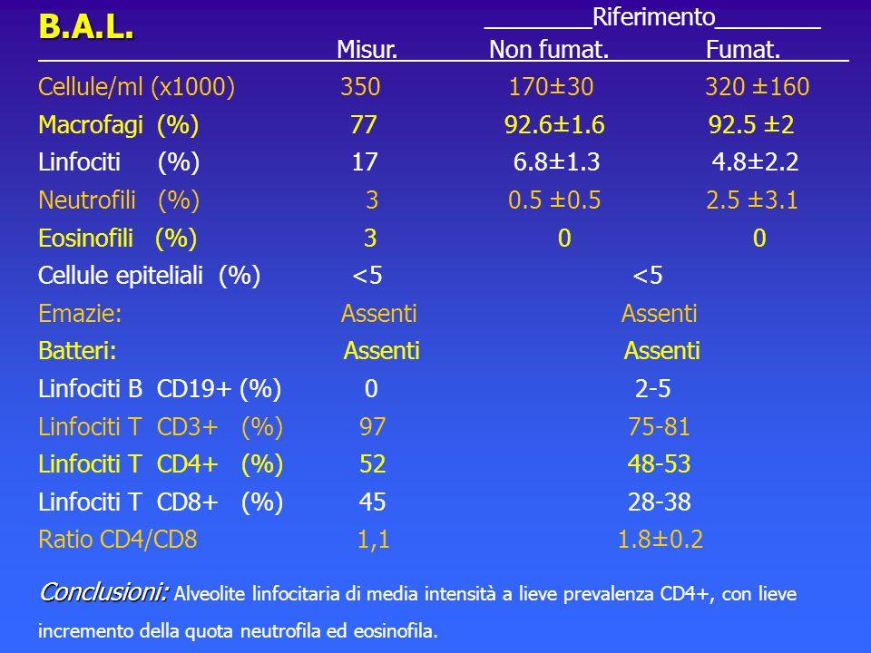 B.A.L. ________Riferimento________ __ Misur.__ __Non fumat.__ _ _Fumat._____ Cellule/ml (x1000) 350 170±30 320 ±160 Macrofagi (%) 77 92.6±1.6 92.5 ±2