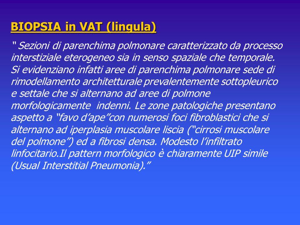 BIOPSIA in VAT (lingula) Sezioni di parenchima polmonare caratterizzato da processo interstiziale eterogeneo sia in senso spaziale che temporale. Si e