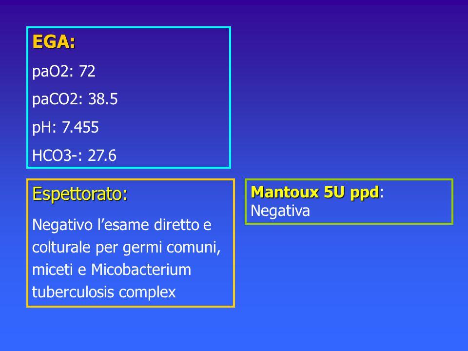 EGA: paO2: 72 paCO2: 38.5 pH: 7.455 HCO3-: 27.6 Mantoux 5U ppd Mantoux 5U ppd: Negativa Espettorato: Negativo lesame diretto e colturale per germi com