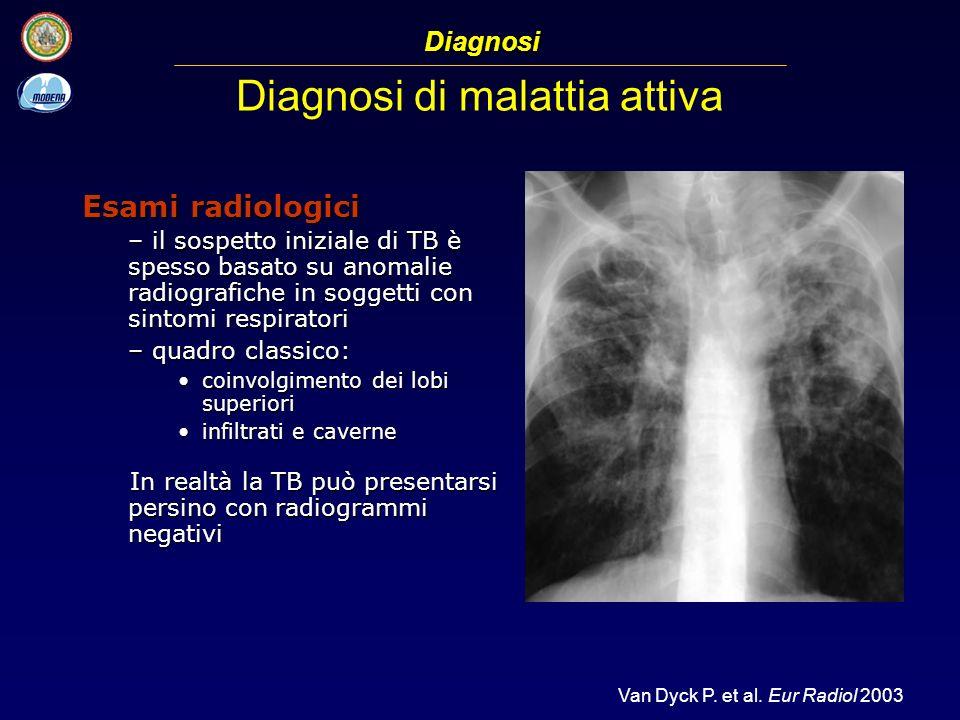 Diagnosi di malattia attiva Esami radiologici – il sospetto iniziale di TB è spesso basato su anomalie radiografiche in soggetti con sintomi respirato