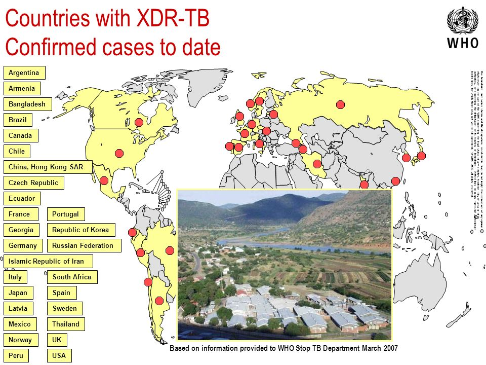 Countries with XDR-TB Confirmed cases to date Czech Republic The boundaries and names shown and the designations used on this map do not imply the exp
