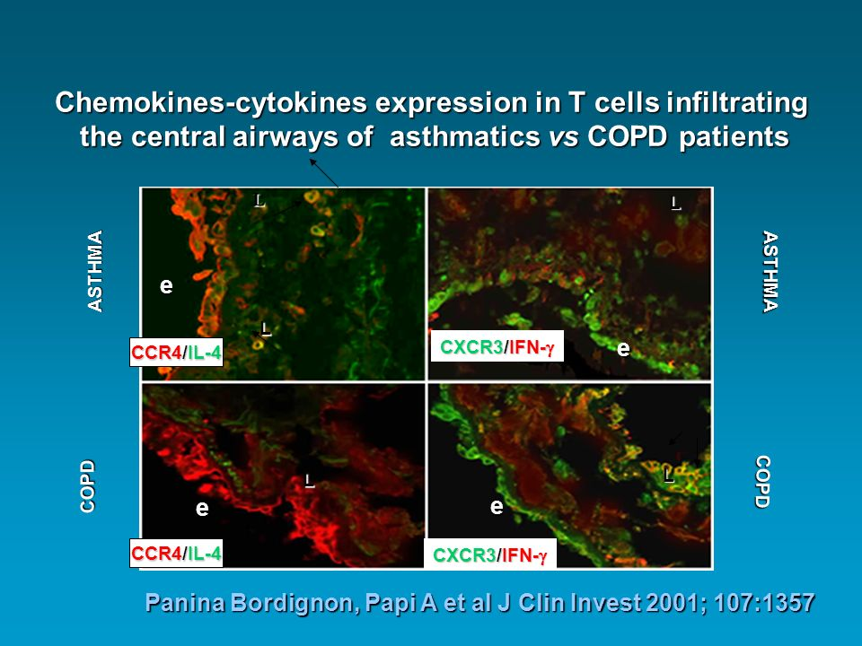 COPD Smokers Non Smokers CXCR3+ cells/mm 2 p = 0.02 Saetta et al, Am J Respir Crit Care Med 2002; 165: 1404-1409