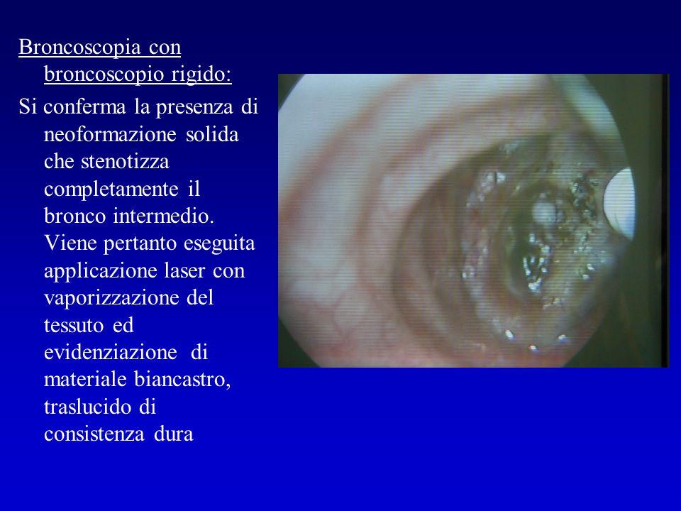 Broncoscopia con broncoscopio rigido: Si conferma la presenza di neoformazione solida che stenotizza completamente il bronco intermedio. Viene pertant