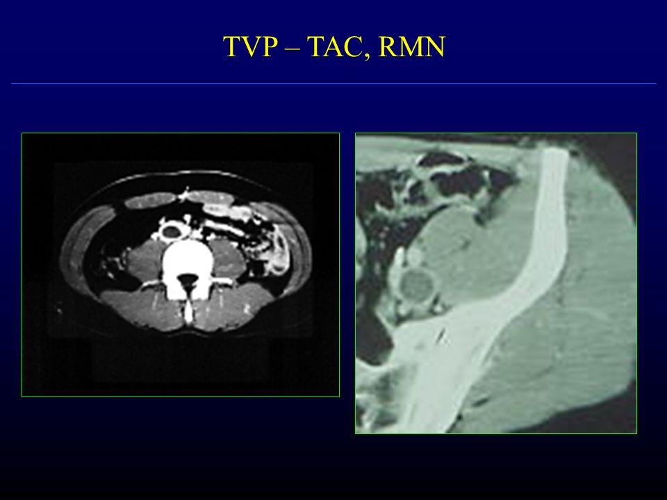 TVP – TAC, RMN