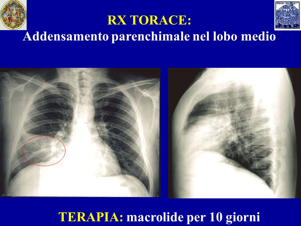 FOLLOW UP (10 giorni dopo) SINTOMI: apiressia, persistenza di tosse con scarso espettorato, di entità ridotta ESAME OBIETTIVO: negativo ESAMI EMATOCHIMICI: - Formula leucocitaria nella norma - GOT: 38 U/L - GPT: 67 U/L SIEROLOGIA: AC ANTI-MYCOPLASMA PNEUMONIAE IgG: 2,79 AC ANTI-MYCOPLASMA PNEUMONIAE IgM: 2,82