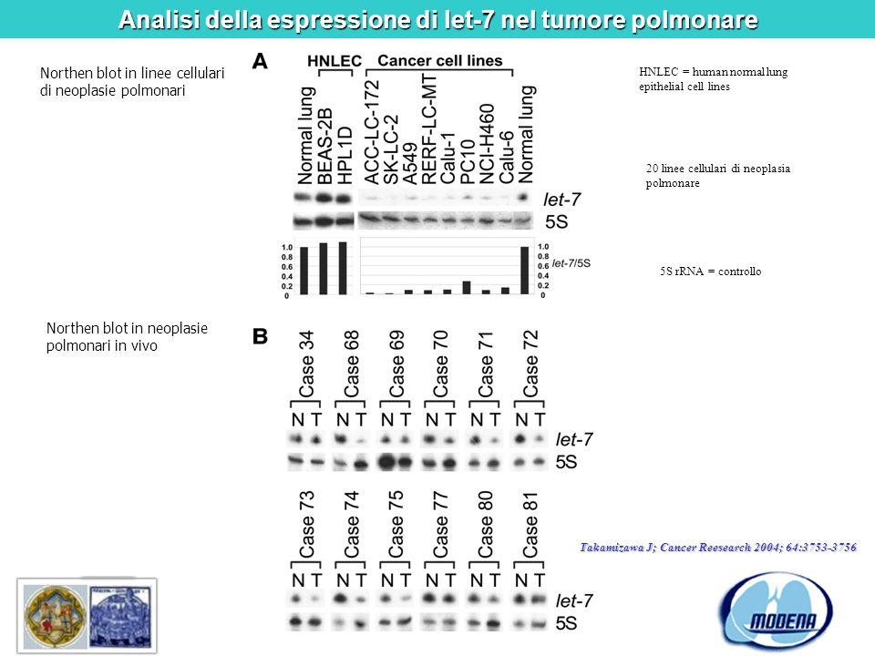 Analisi della espressione di let-7 nel tumore polmonare Northen blot in linee cellulari di neoplasie polmonari Northen blot in neoplasie polmonari in