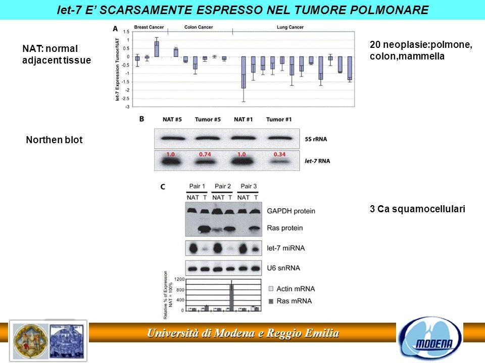 Università di Modena e Reggio Emilia let-7 E SCARSAMENTE ESPRESSO NEL TUMORE POLMONARE NAT: normal adjacent tissue Northen blot 20 neoplasie:polmone,