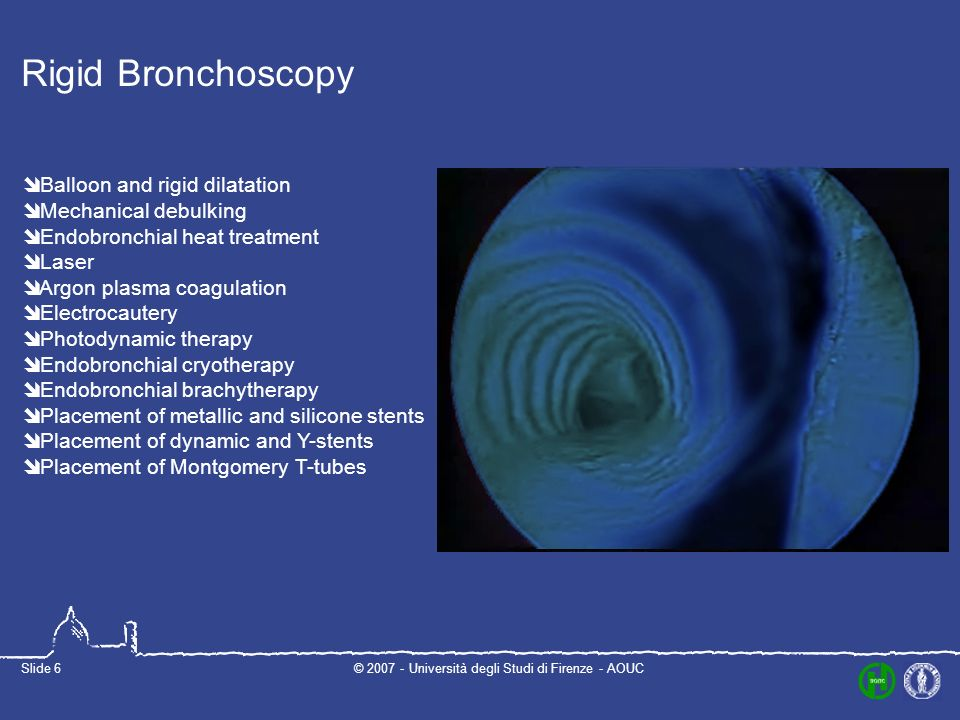 © Università degli Studi di Firenze - AOUCSlide 6 Rigid Bronchoscopy Balloon and rigid dilatation Mechanical debulking Endobronchial heat treatment Laser Argon plasma coagulation Electrocautery Photodynamic therapy Endobronchial cryotherapy Endobronchial brachytherapy Placement of metallic and silicone stents Placement of dynamic and Y-stents Placement of Montgomery T-tubes