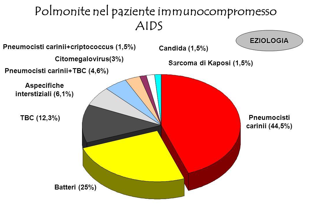 Diminuzione di Neutrofili (< 500/mm 3 ) linfociti T (CD4+) linfociti B macrofagi alveolari fagociti piastrine Polmonite nel paziente immunocompromesso