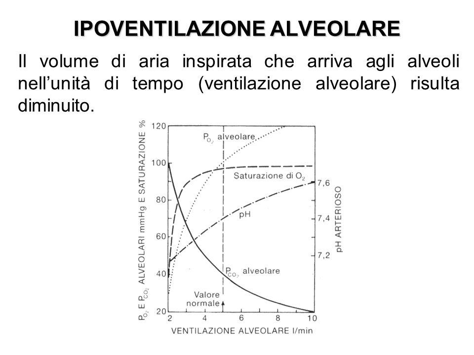 IPOVENTILAZIONE ALVEOLARE Il volume di aria inspirata che arriva agli alveoli nellunità di tempo (ventilazione alveolare) risulta diminuito.