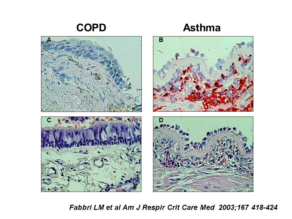 Asthma A B C B D COPD Fabbri LM et al Am J Respir Crit Care Med 2003;167 418-424