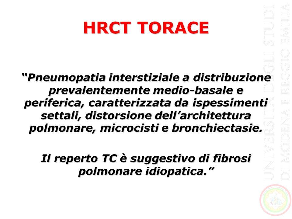 Pneumopatia interstiziale a distribuzione prevalentemente medio-basale e periferica, caratterizzata da ispessimenti settali, distorsione dellarchitett