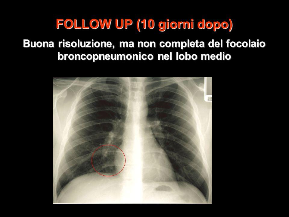 FOLLOW UP (10 giorni dopo) Buona risoluzione, ma non completa del focolaio broncopneumonico nel lobo medio