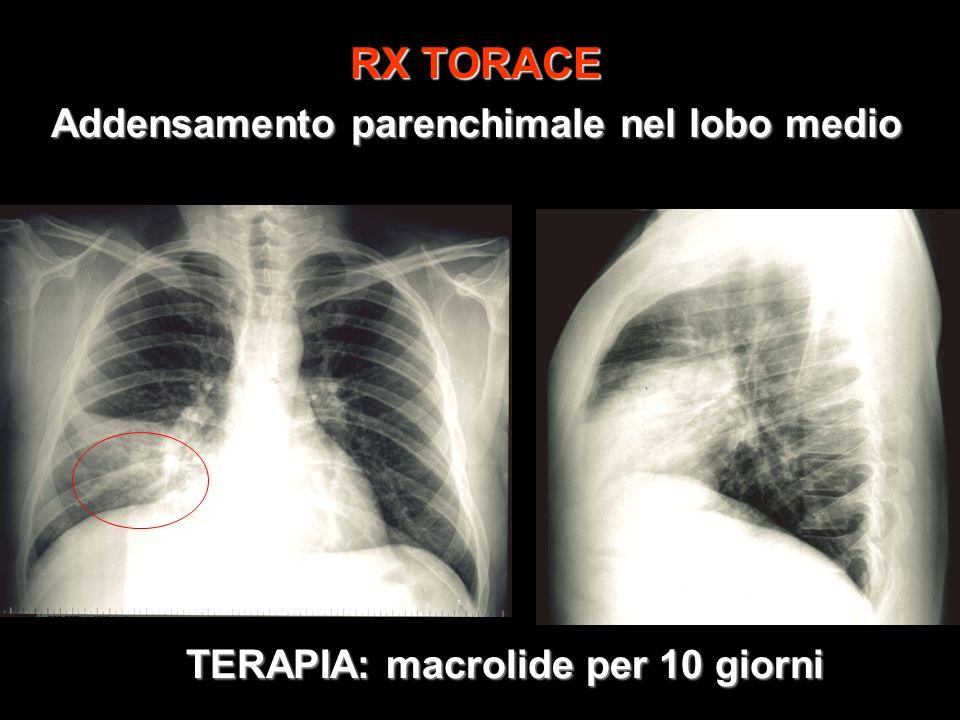 RX TORACE Addensamento parenchimale nel lobo medio TERAPIA: macrolide per 10 giorni