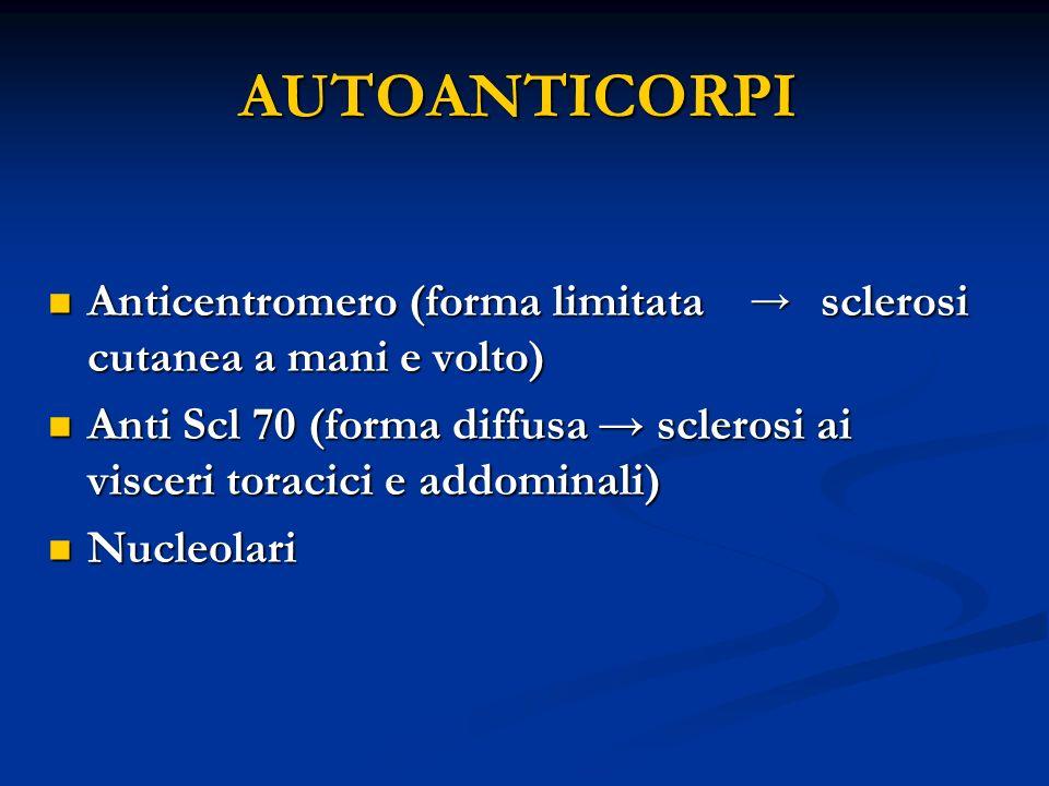 AUTOANTICORPI Anticentromero (forma limitata sclerosi cutanea a mani e volto) Anticentromero (forma limitata sclerosi cutanea a mani e volto) Anti Scl