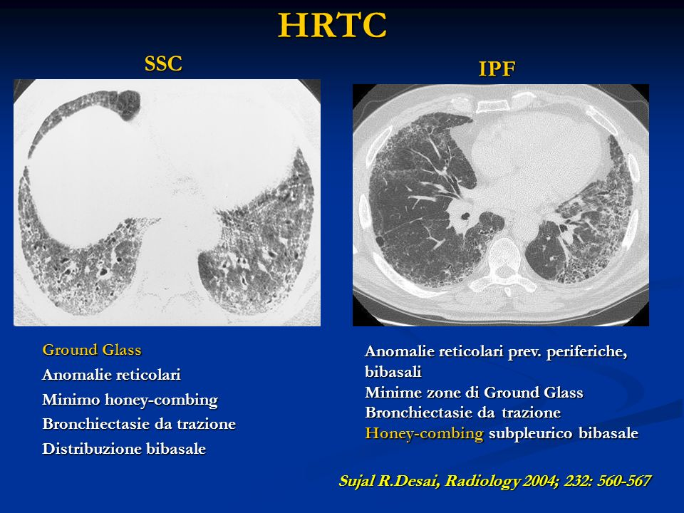 HRTC Ground Glass Anomalie reticolari Minimo honey-combing Bronchiectasie da trazione Distribuzione bibasale Anomalie reticolari prev. periferiche, bi