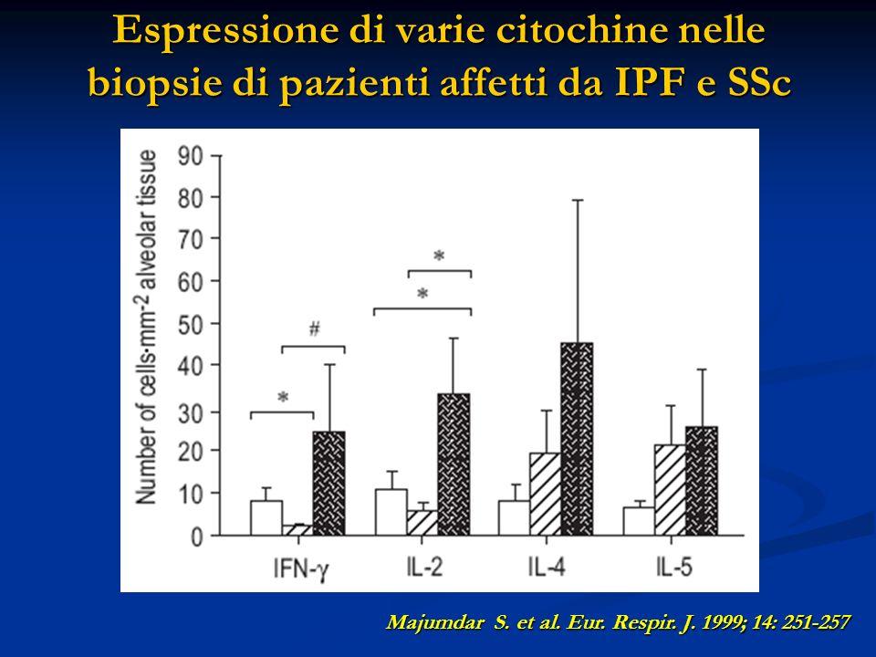 Espressione di varie citochine nelle biopsie di pazienti affetti da IPF e SSc Majumdar S.