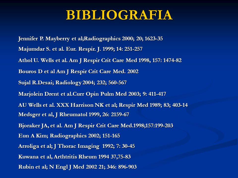 BIBLIOGRAFIA BIBLIOGRAFIA Majumdar S.et al. Eur. Respir.