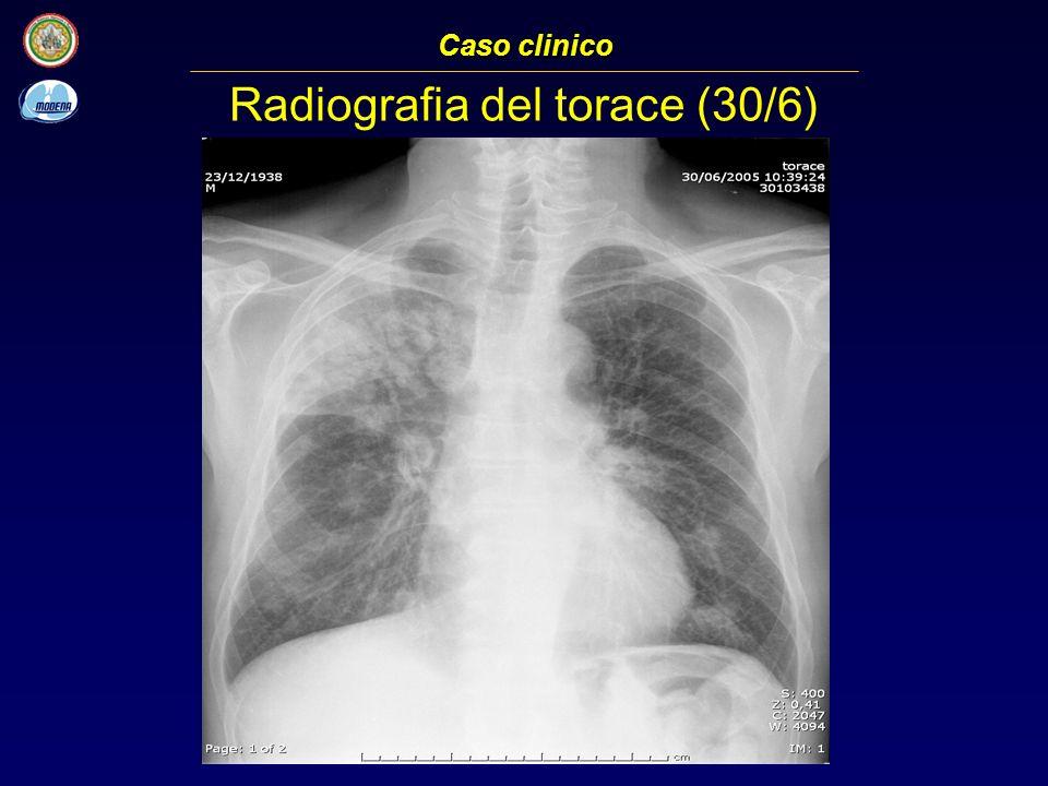Radiografia del torace (30/6) Caso clinico