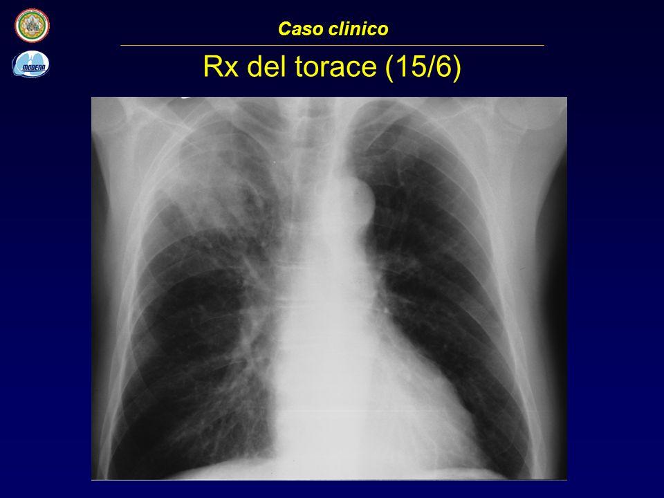 TC del torace (15/6) Caso clinico