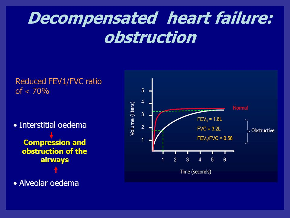 Decompensated heart failure: obstruction Interstitial oedema Alveolar oedema Reduced FEV1/FVC ratio of < 70% Compression and obstruction of the airways
