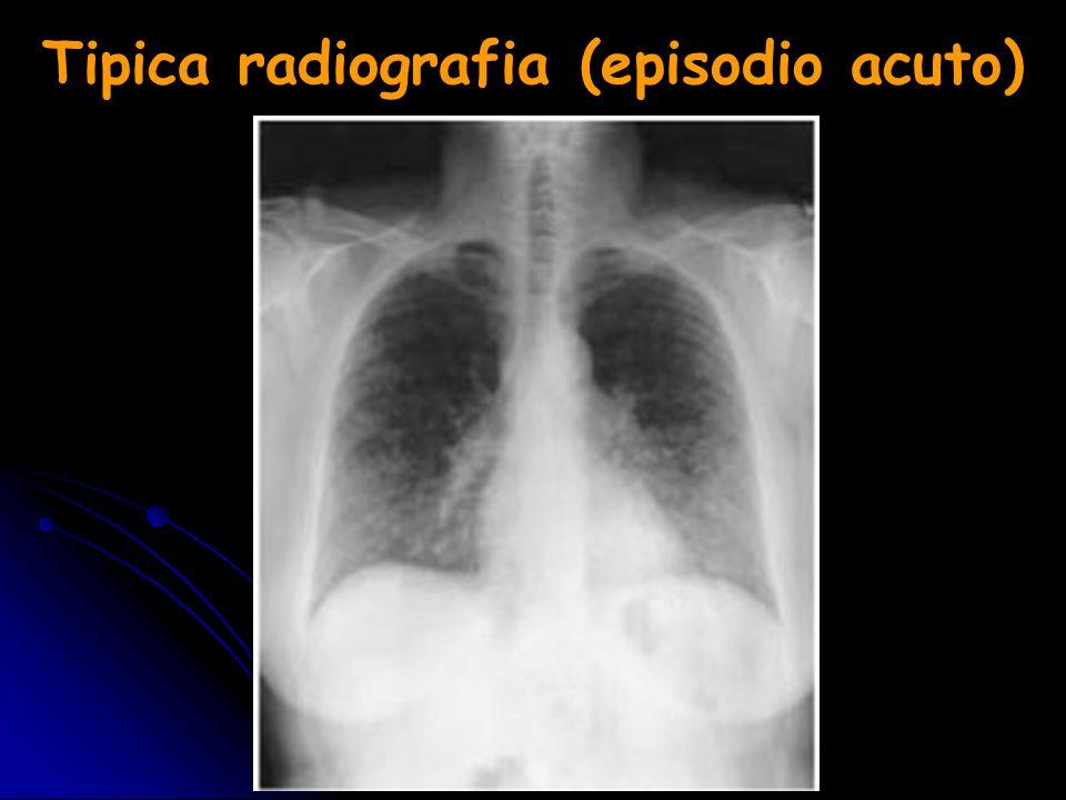 Tipica radiografia (episodio acuto)