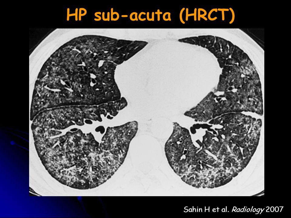 HP sub-acuta (HRCT) Sahin H et al. Radiology 2007