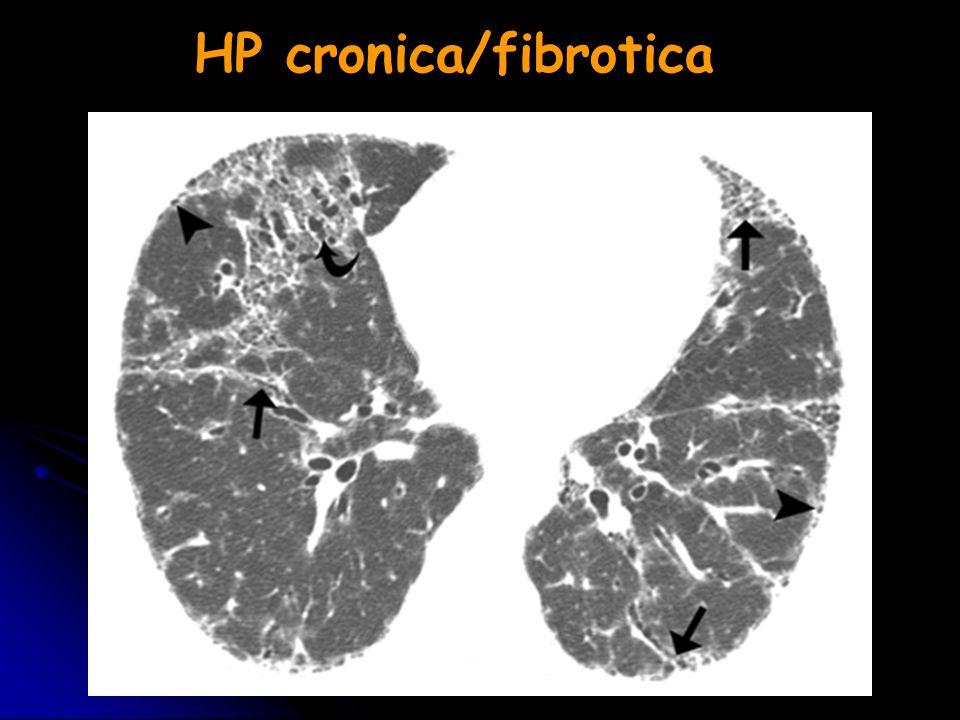 HP cronica/fibrotica