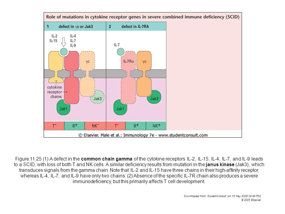 SCID (Severe Combined Immunodeficiency) SCID con deficit di adenosina deaminasi (ADA) SCID con deficit di adenosina deaminasi (ADA): trasmissione autosomica recessiva; deficit enzimatico di ADA (che converte adenosina e deossiadenosina in inosina e 2-deossinosina) dovuto a mutazione o delezione del relativo gene, seguito da accumulo intracellulare di substrati enzimatici tossici per il linfocita T.
