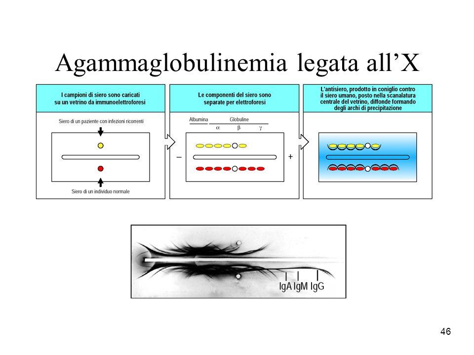 46 Agammaglobulinemia legata allX