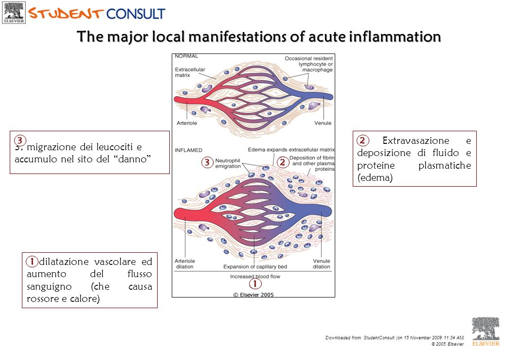 The major local manifestations of acute inflammation Downloaded from: StudentConsult (on 15 November 2009 11:34 AM) © 2005 Elsevier 1. dilatazione vas
