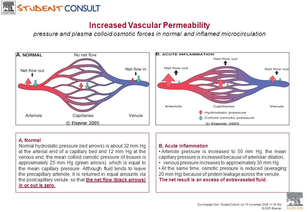 B, Acute inflammation Arteriole pressure is increased to 50 mm Hg, the mean capillary pressure is increased because of arteriolar dilation, venous pre
