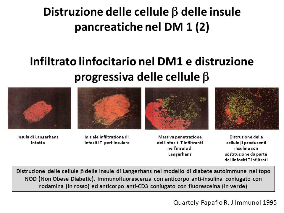 Distruzione delle cellule delle insule pancreatiche nel DM 1 (2) Infiltrato linfocitario nel DM1 e distruzione progressiva delle cellule Insula di Lan