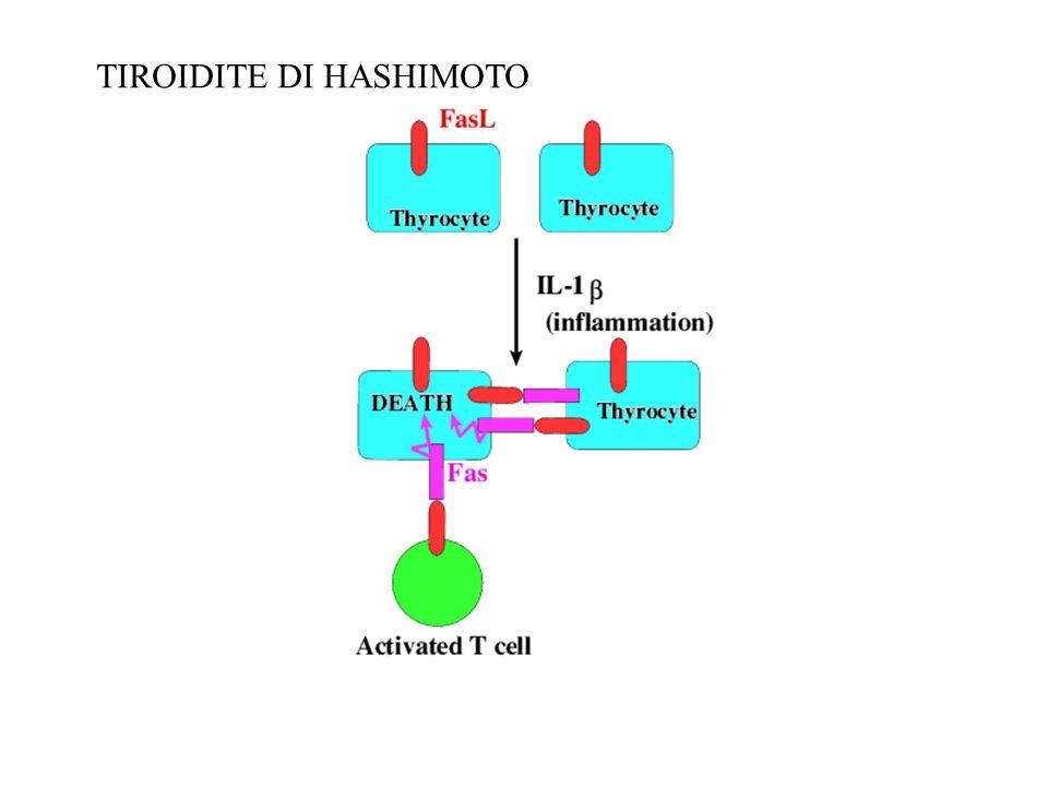 TIROIDITE DI HASHIMOTO