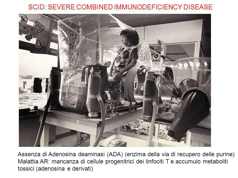 SCID: SEVERE COMBINED IMMUNODEFICIENCY DISEASE Assenza di Adenosina deaminasi (ADA) (enzima della via di recupero delle purine) Malattia AR: mancanza di cellule progenitrici dei linfociti T e accumulo metaboliti tossici (adenosina e derivati)