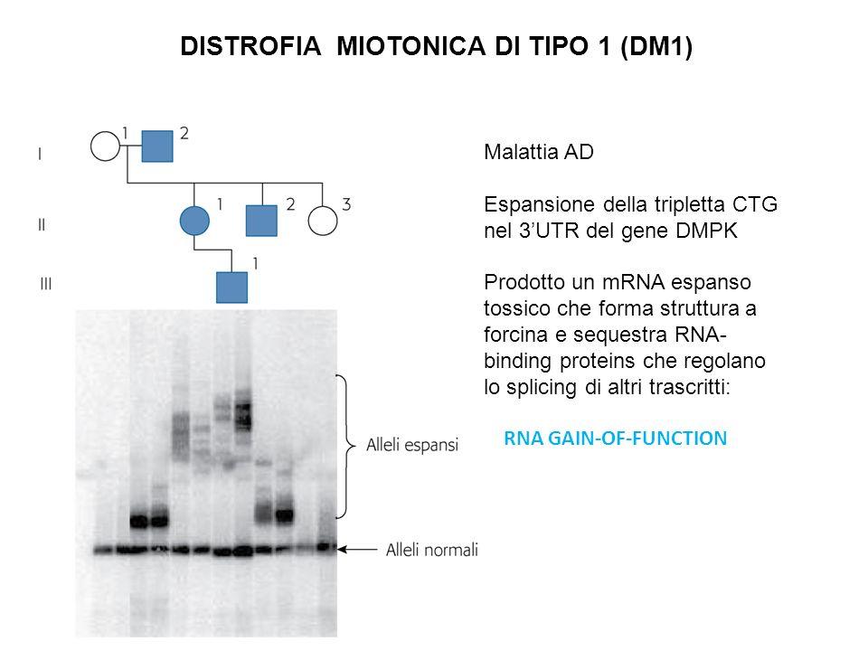 DISTROFIA MIOTONICA DI TIPO 1 (DM1) Malattia AD Espansione della tripletta CTG nel 3UTR del gene DMPK Prodotto un mRNA espanso tossico che forma strut
