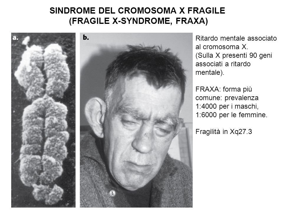 SINDROME DEL CROMOSOMA X FRAGILE (FRAGILE X-SYNDROME, FRAXA) Ritardo mentale associato al cromosoma X. (Sulla X presenti 90 geni associati a ritardo m