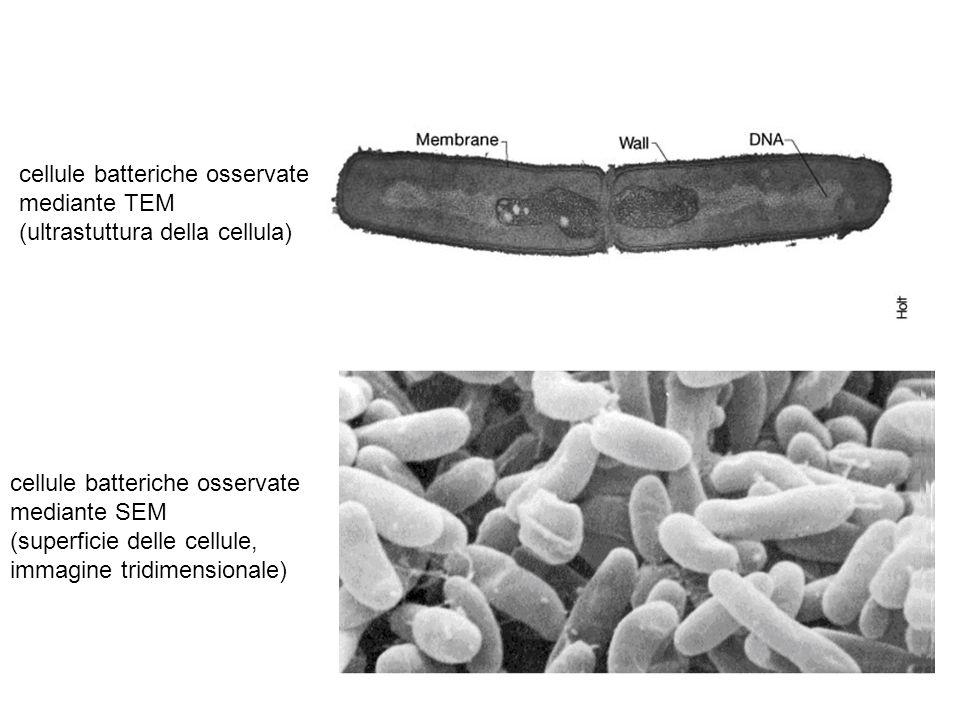 cellule batteriche osservate mediante TEM (ultrastuttura della cellula) cellule batteriche osservate mediante SEM (superficie delle cellule, immagine