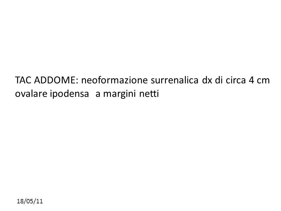 18/05/11 TAC ADDOME: neoformazione surrenalica dx di circa 4 cm ovalare ipodensa a margini netti