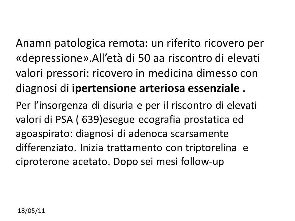 18/05/11 Anamn patologica remota: un riferito ricovero per «depressione».Alletà di 50 aa riscontro di elevati valori pressori: ricovero in medicina di