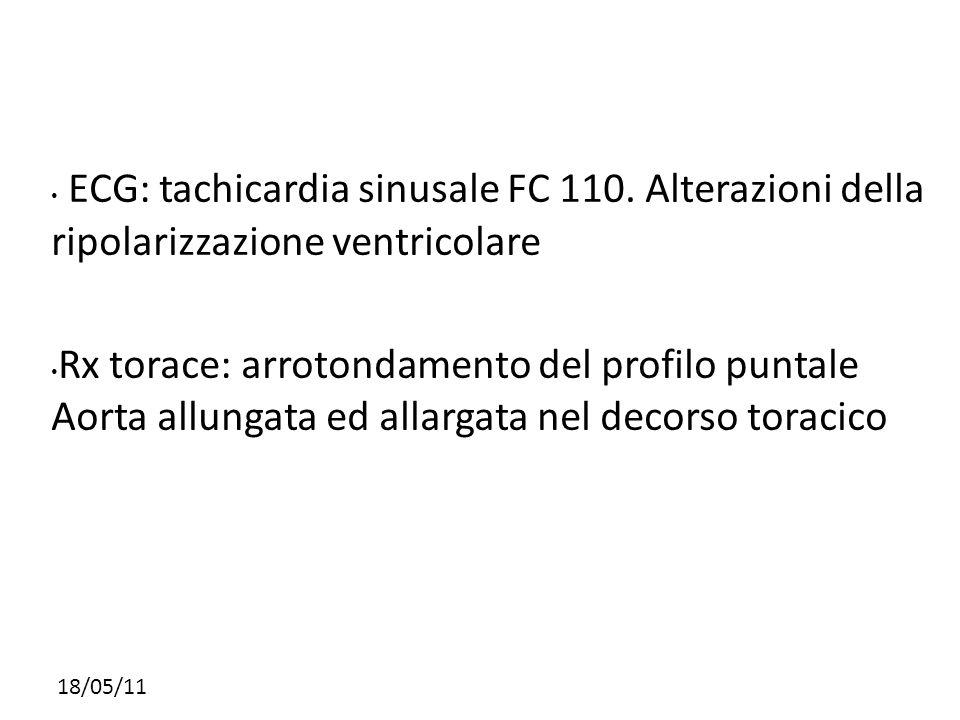 18/05/11 ECG: tachicardia sinusale FC 110. Alterazioni della ripolarizzazione ventricolare Rx torace: arrotondamento del profilo puntale Aorta allunga