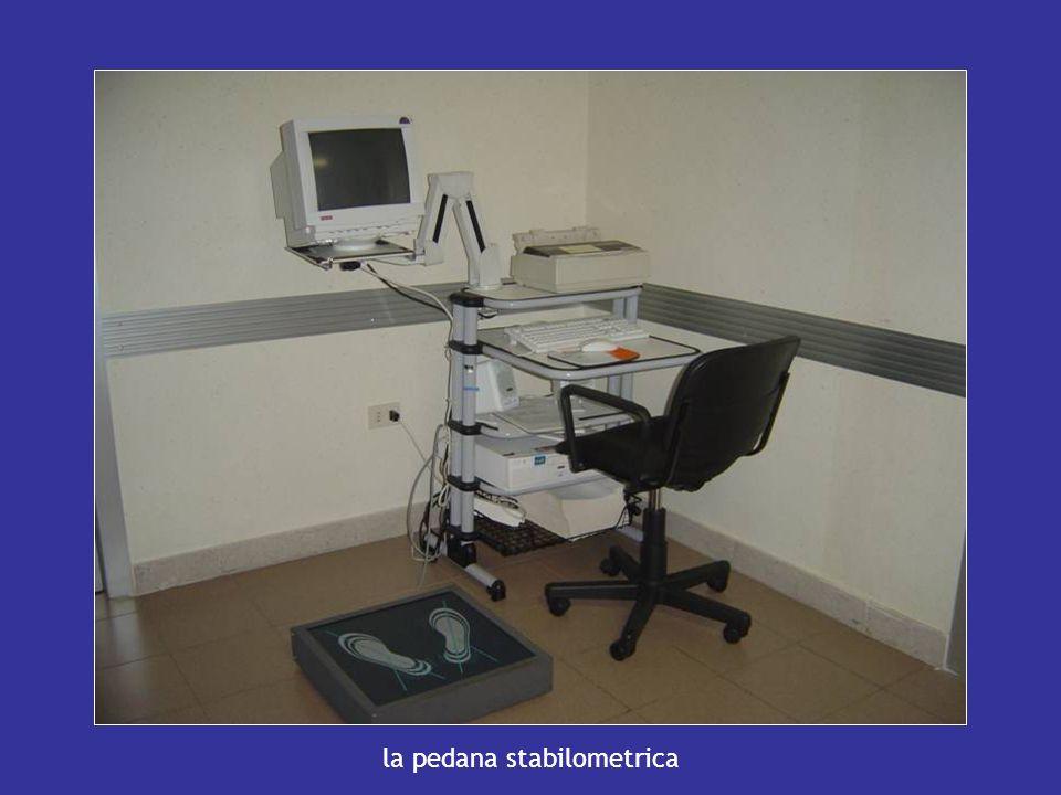la pedana stabilometrica