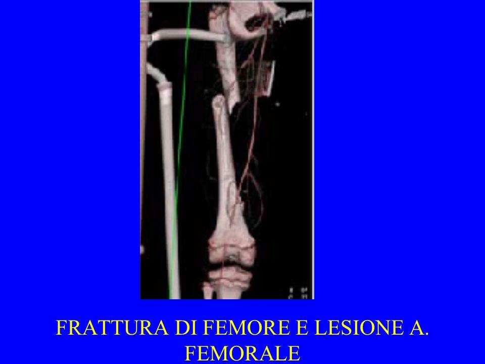 FRATTURA DI FEMORE E LESIONE A. FEMORALE