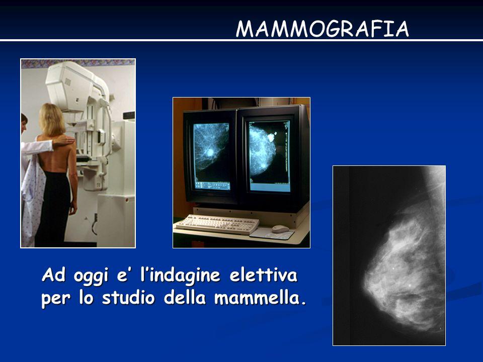 DIAGNOSI PRECOCE Ca mammario Opacita nodulari 64% MAMMOGRAFIA Microcalcificazioni Distorsione della struttura 17% 19%