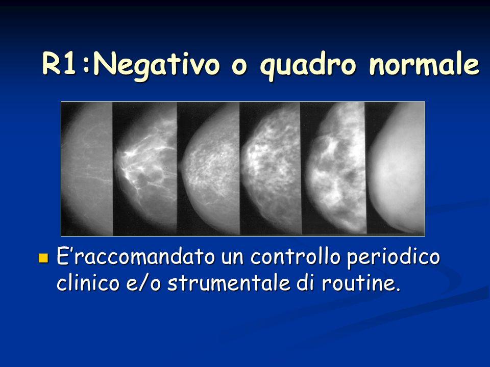 E4:segni di sospetto E4:segni di sospetto E5:segni di neoplasia maligna E5:segni di neoplasia maligna Prelievo con ago / biopsia chirurgica
