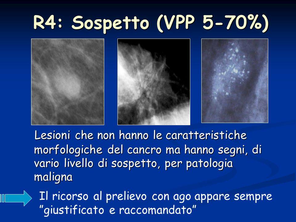 R5: positivo per patologia maligna Eformale lindicazione alla biopsia escissionale