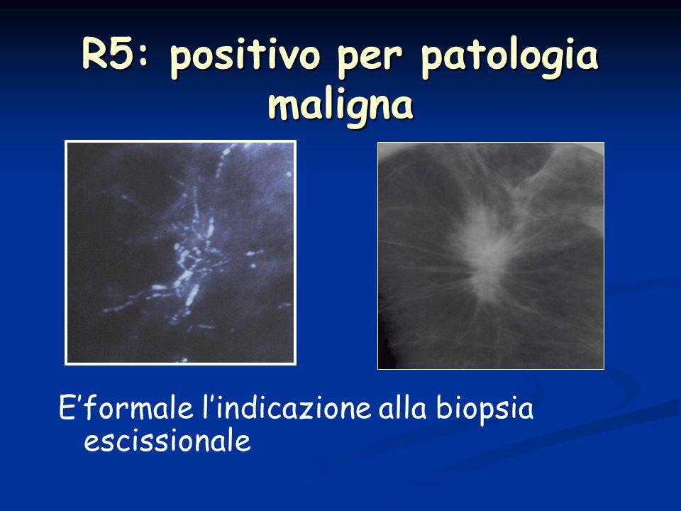Nonostante levoluzione tecnologica continua rimane un esame complementare alla Mammografia Rizzatto G.